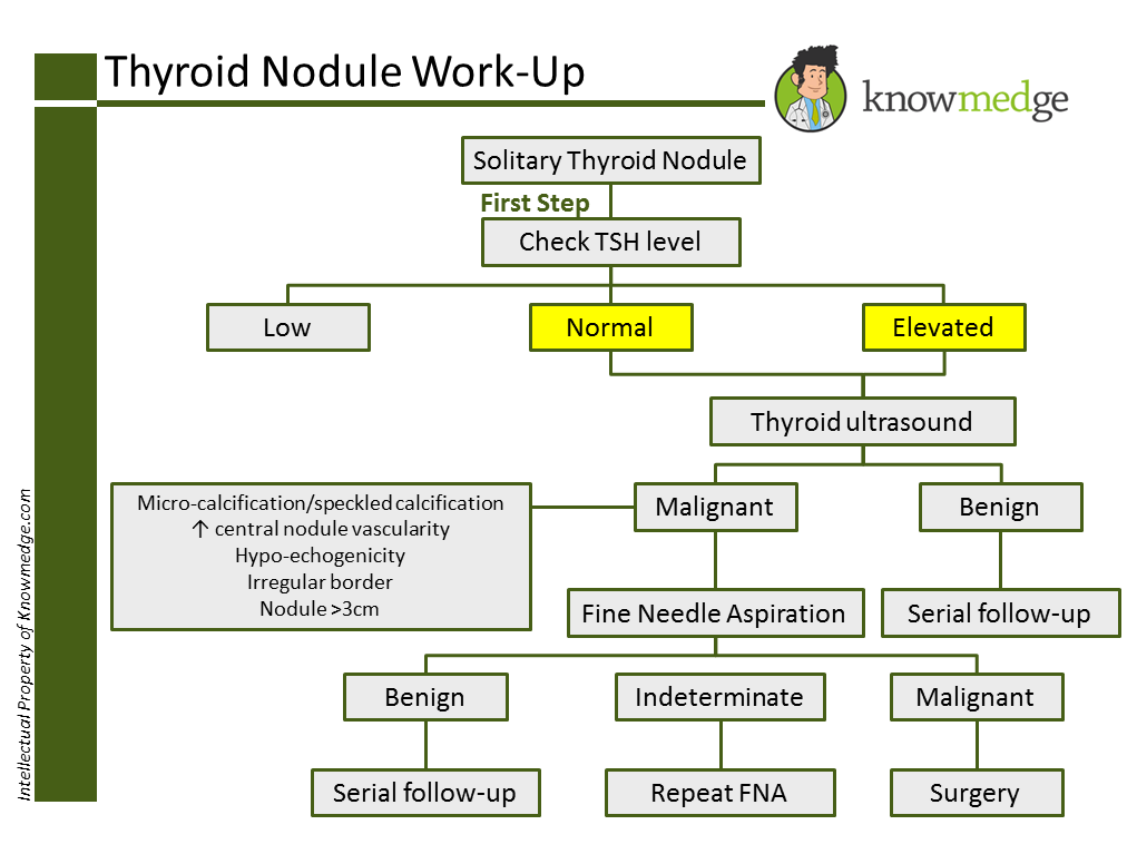 Abim Exam Prep How To Work Up A Thyroid Nodule Usmle Internal