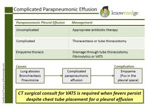 Internal Medicine Board Exam Review - Pleural Effusion