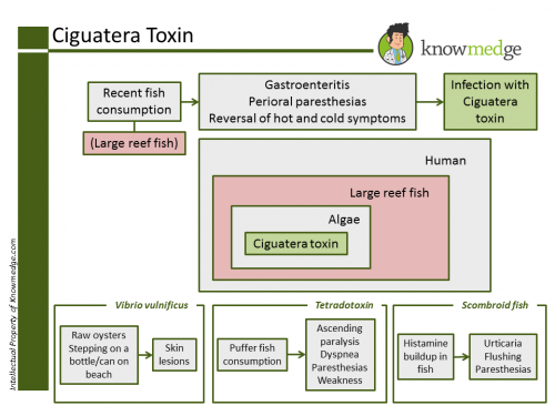 Ciguatera toxin poisoning cases underreported study finds for Ciguatera fish poisoning