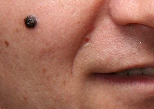 Nodular Melanoma Dermatology